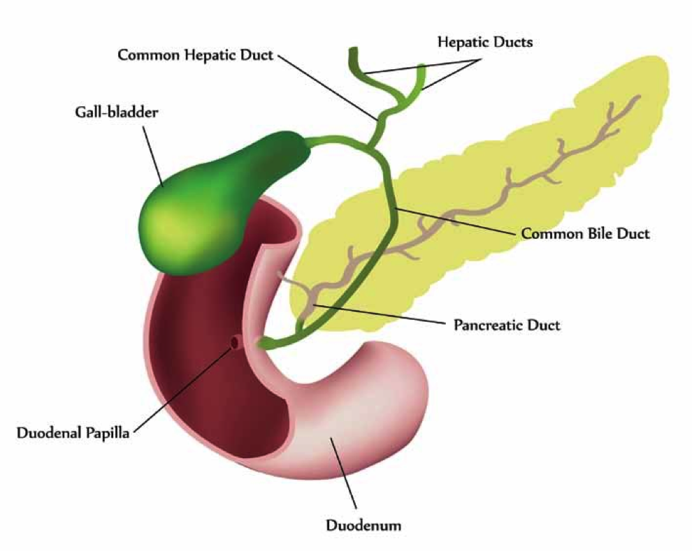 biliary sludge: why the gall bladder may be key to ... gall bladder diagram gall stone pain diagram
