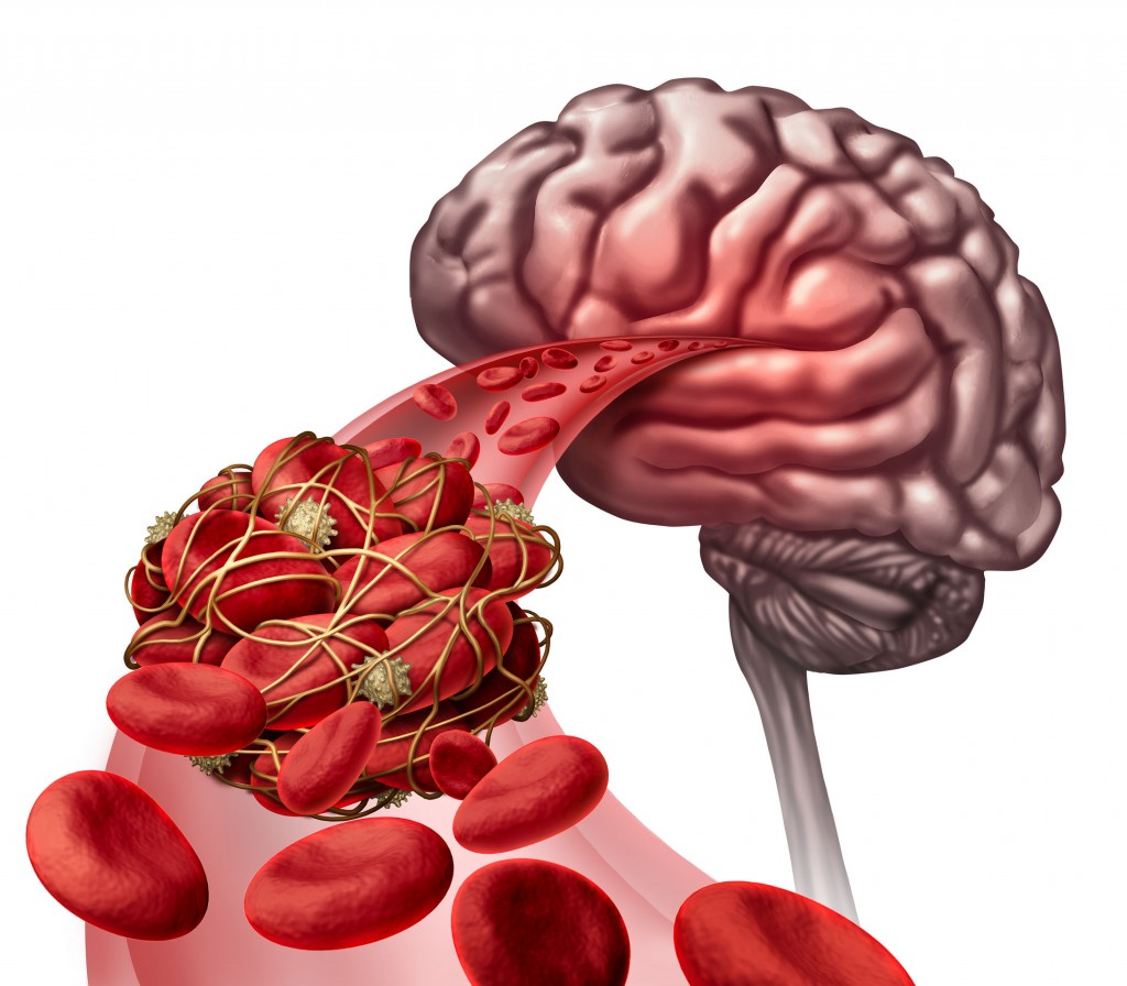 55128017 - brain blood clot medical concept as 3d illustration blood cells blocked by an artery blockage thrombus causing a blockage of blood flow to the neurology anatomy.